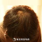 【オリジナル発毛薬・メソセラピー|fy3418】男性発毛 年齢:23歳の症例