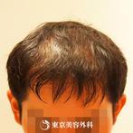 【オリジナル発毛薬・メソセラピー|fy4219】男性発毛 年齢:32歳の症例