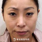 【埋没二重&鼻ヒアルロン酸&ほうれい線ヒアルロン酸|fy5895】メスを使わず短時間で気になる悩みを解消の症例