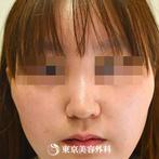 【鼻中隔延長&隆鼻術&頬骨削り|gz147】鼻先を細く整えてすっきりとした鼻への症例