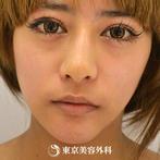 【埋没二重&ヒアルロン酸涙袋形成&鼻ヒアルロン酸&鼻尖形成&顎プロテーゼ|gz215】プチ整形で華やかな印象にの症例