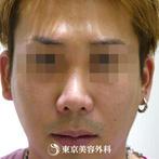 【鼻BNLS注射|fy3688】鼻BNLS注射でスッキリとしたお鼻の形にの症例