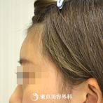 【額ヒアルロン酸|gz4297】額ヒアルロン酸注入で立体的な顔立ちにの症例
