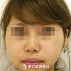【鼻ヒアルロン酸|gz4542】たった5分で美しい鼻のラインにの症例