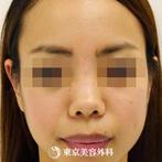 【鼻ヒアルロン酸|gz4695】わず5分の注入術で理想の鼻筋にの症例