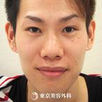 【埋没二重&挙筋短縮法&目の脂肪とり&保存軟骨隆鼻術&小鼻縮小&鼻尖形成|ou145】鼻筋が通り目も大きく強調され顔全体がぐっと整った印象にの症例