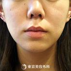 【小顔BNLS注射|ou328】切らずに脂肪を減少させて短期間で理想の小顔にの症例