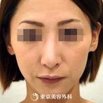 【鼻中隔延長&プロテーゼ入れ替え|ou467】鼻中隔延長で外国人のような長いシャープな鼻にの症例