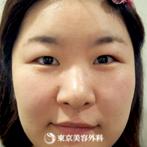 【眼瞼下垂|ou1005】目力が生まれ自然な二重ラインにの症例