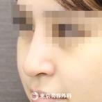 【鼻中隔延長&鷲鼻削り(ハンプ削り)&鼻骨骨切り(幅寄せ)&シリコンプロテーゼ|ou1005】スッと伸びた 存在感のあるきれいな鼻にの症例