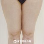 【脂肪吸引(大腿部)|g3944】ダイエットでは痩せにくい太ももを脂肪吸引で細くの症例