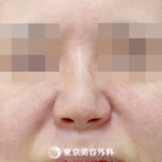 【小鼻縮小(ケーブル法)|ow7770】メスを使わず女性らしい自然な小鼻にの症例