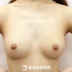 【豊胸(脂肪注入)|gz3336】ご自身の余分な脂肪を吸引して注入の症例