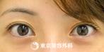 【ヒアルロン酸涙袋形成|gz4992】注射だけでぷっくりかわいい目元にの症例