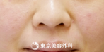 【しわ ヒアルロン酸|gz1025】注射だけ法令線のシワがスッキリの症例
