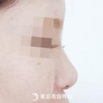 【鼻プロテーゼ|ok3606】低く丸い鼻に高さを出し、洗練された印象にの症例