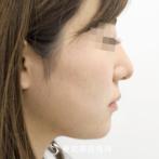 【鼻ヒアルロン酸・顎ヒアルロン酸|si1242】たった5分でバランスのとれた綺麗な横顔にの症例