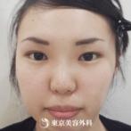 【目頭切開、埋没二重、鼻ヒアルロン酸|f5951】女性らしい可愛らしい目にの症例