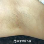 【ワキガ・多汗症(吸引法)|fk5969】切開が小さく、手術直後から傷痕が目立ちませんの症例