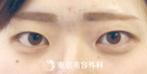 【埋没二重|ak1574】メイク感覚で手軽に目力UP!の症例