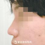 【鼻ヒアルロン酸|gi5262】理想の高さと鼻筋が手軽に注射で手に入るの症例