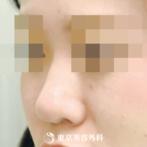 【鼻ヒアルロン酸|gi5265】気軽に理想の鼻筋にの症例