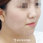【脂肪吸引(フェイスライン)|ok6561】痩せにくいフェイスラインも一気にシャープにの症例
