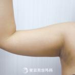 【脂肪吸引(二の腕)|ok6561】薄着で気になる二の腕の脂肪にの症例