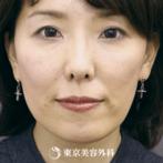 【スレッドリフト(N-COG、法令線ヒアルロン酸、顎ボトックス)|si1448】童顔トータルプロデュースでたるみ解消の症例