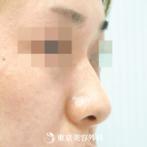【鼻ヒアルロン酸|gi5523】注射で低い鼻にしっかり高さをの症例