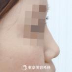 【鼻中隔延長(耳介軟骨)・オーダープロテーゼ|ok6561】バランスの取れた美鼻にの症例
