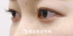 【涙袋ヒアルロン酸|si1345】メイク感覚でナチュラルなやさしい目元にの症例