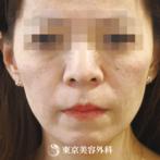 【法令線ヒアルロン酸・ビーナスチーク|um372】注射だけで立体感のある若々しい顔にの症例