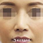 【鼻中隔延長&他院鼻プロテーゼ入れ替え|si1959】スッキリとしたシャープな鼻筋にの症例