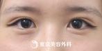 【埋没二重|ak3892】自然な二重で可愛らしい目元にの症例
