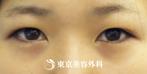 【二重切開|si1400】自然なパッチリ二重にの症例