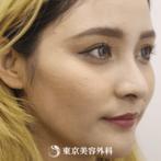【ほくろ除去(切開)|gi4925】傷跡も目立たない自然なお肌にの症例