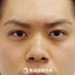 【鼻ヒアルロン酸】鼻筋と頬にヒアルロン酸を注入することで、キリッとした目の立体的なハーフ顔にの症例