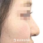 【鼻ヒアルロン酸|si1345】手軽にナチュラル美鼻メイクの症例