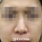 【鼻尖形成|si354】鼻先をシャープにしてすっきりとした鼻にの症例