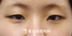 【埋没二重、目頭切開|ak3764】埋没二重と目頭切開でキリッとした女性らしい目元にの症例