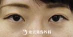 【埋没二重|si1586】自然な二重で明るい目元にの症例