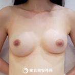 【豊胸(バッグ挿入)|fy4637】ふっくらとボリュームのある綺麗なバストにの症例