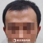 【オリジナル発毛薬・メソセラピー|fy2921】男性発毛 年齢:28歳の症例