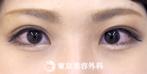 【埋没二重(4点留め)|fy6788】自然な平行二重で黒目がパッチリの症例