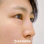 【鼻ヒアルロン酸&切開二重(全切開)&涙袋形成|gz253】鼻筋が通りナチュラルだけどパッチリな目にの症例