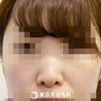 【鼻ヒアルロン酸|si1499】手軽に綺麗な鼻筋にの症例