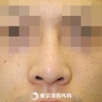 【鼻プロテーゼ(オーダーメイド)|si872】スッと綺麗な鼻筋にの症例