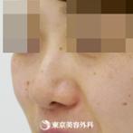 【鼻尖形成&鼻中隔延長&鼻プロテーゼ&ハンプ削り|gz3012】丸い鼻をすっきりと細い鼻先にの症例