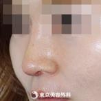 鼻尖形成(軟骨移植)、隆鼻術(プロテーゼ)|si1218】鼻筋の通った綺麗な鼻にの症例